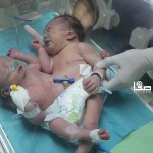 ودلادة توأم سيامي في غزة