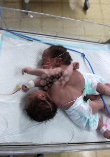 ولادة توأم سيامي في الخليل